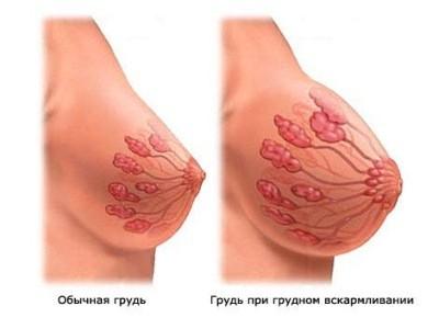 как выглядит силиконовая грудь после кормления