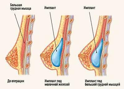 расположение силиконовых имплантов