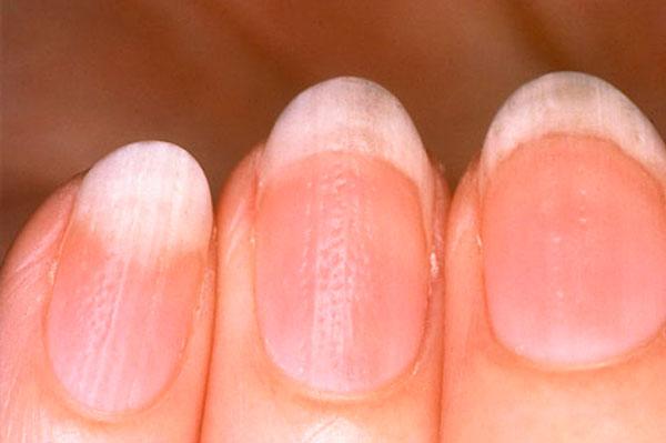 Ямочки на ногтях