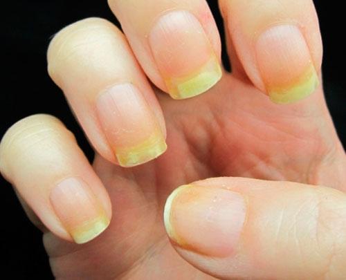 Неухоженные ногти (пример 1)